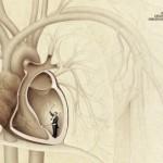 ZKO_Heartbeat-412x271